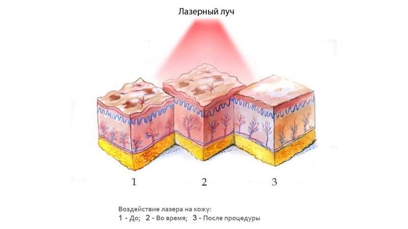 Воздействие лазера на кожу: до, во время и после процедуры соответственно