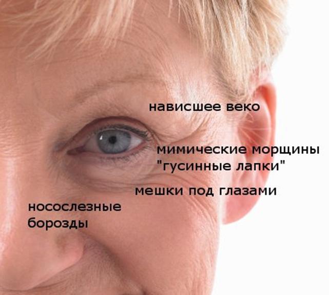 Основные виды возрастных морщин в параорбитальной зоне