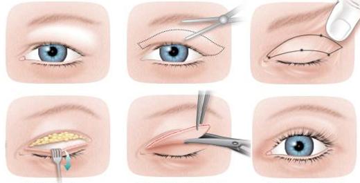 блефаропластика — операция по удалению грыж и избытка кожи в области верхних и нижних век