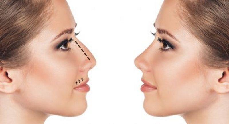 изменение лица хирургическим вмешательством
